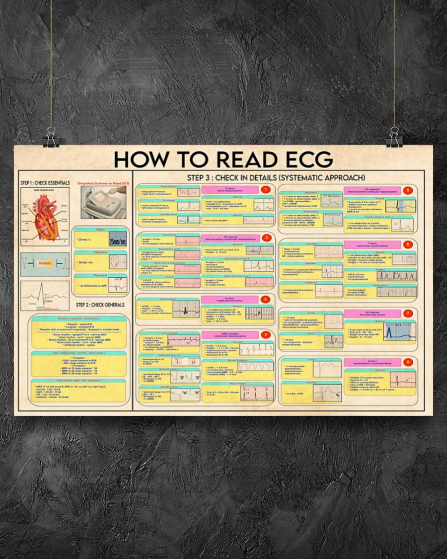 Cardiologist how to read ecg poster